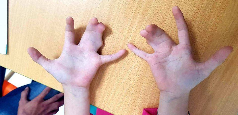 Bàn tay bé N. với các ngón dính lại với nhau