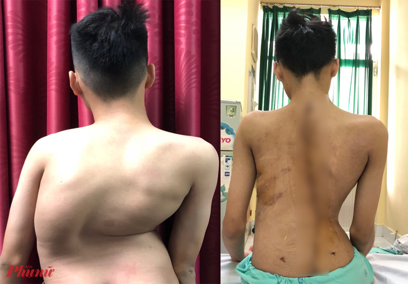 Em Đ. trước và sau phẫu thuật