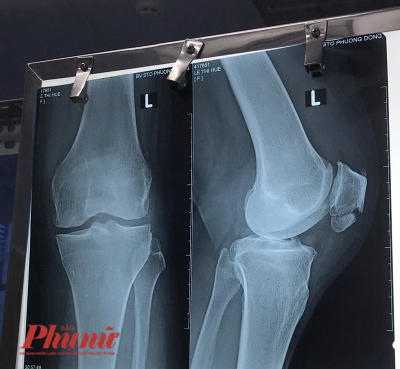 Hình ảnh trên phim X-quang vết thương gãy xương bánh chè của bệnh nhân L.T.H., Long An