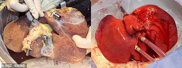 Mẫu gan tách ra từ cơ thể người hiến (trái) được duy trì trong trạng thái tốt (phải) và thậm có thể tự phục hồi nhờ chiếc máy mới.