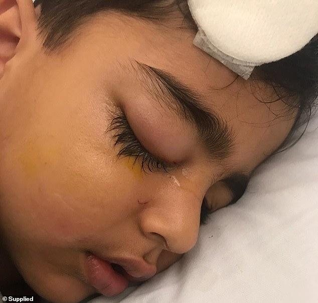 Cậu bé Saad 5 tuổi thì bị móc đâm vào mặt khi cúi xuống nhặt chiếc áo rơi trên mặt đất.