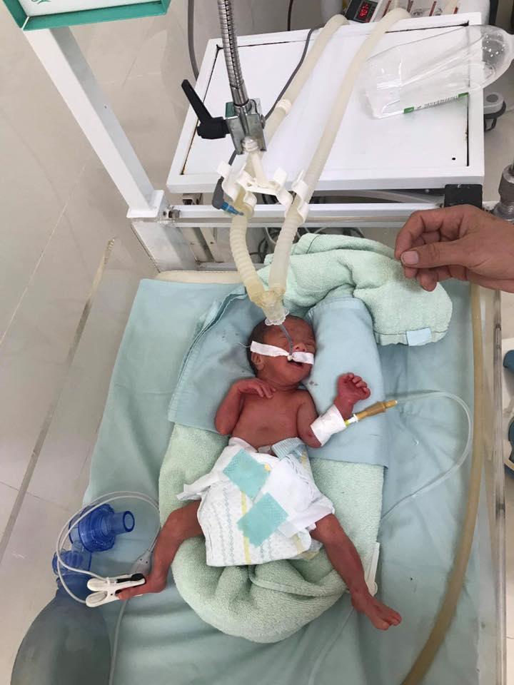 Em bé vừa mới sinh ở tuần 28 và chỉ nặng… 800 gr