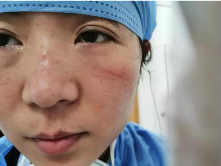 Cận cảnh vết thương ở hai bên gò má và sống mũi bị mòn của y tá trưởng Ni Fang tại bệnh viên Trung ương Vũ Hán. Chia sẻ với phóng viên tờ Thanh niên Bắc Kinh, Ni Fang cho biết do luôn đeo khẩu trang gần như cả ngày ngoại trừ giờ đi ăn nên những thương tổn trên mặt là điều không thể tránh khỏi. Khi làm việc, cô hoàn toàn không có cảm giác gì nhưng lúc tháo đồ bảo hộ và khẩu trang, toàn thân ướt đẫm mồ hôi và có chút khó chịu.