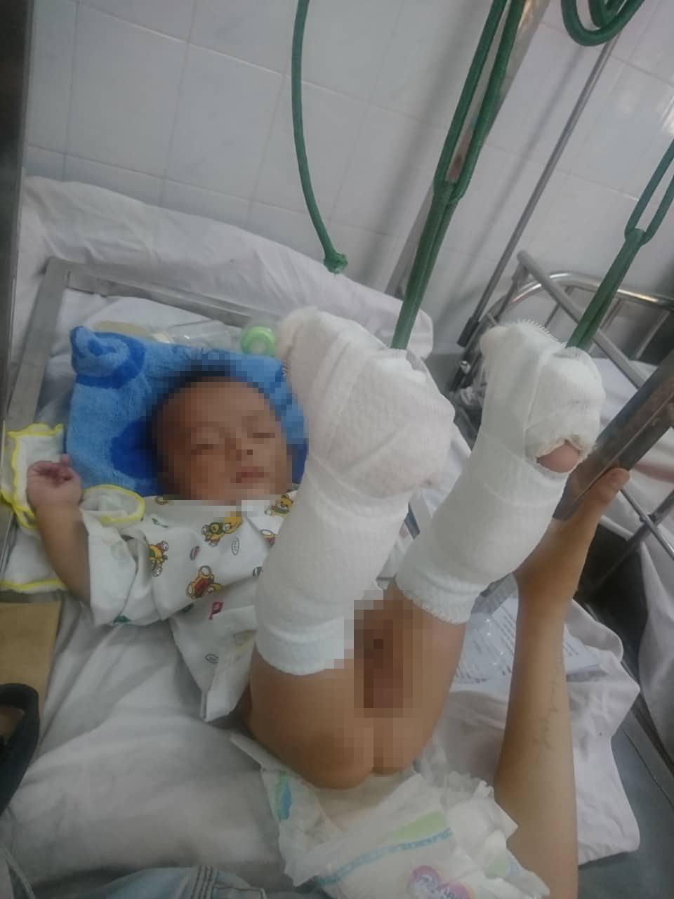 Bé K nhập viện trong tình tarng5 thương tích nặng.