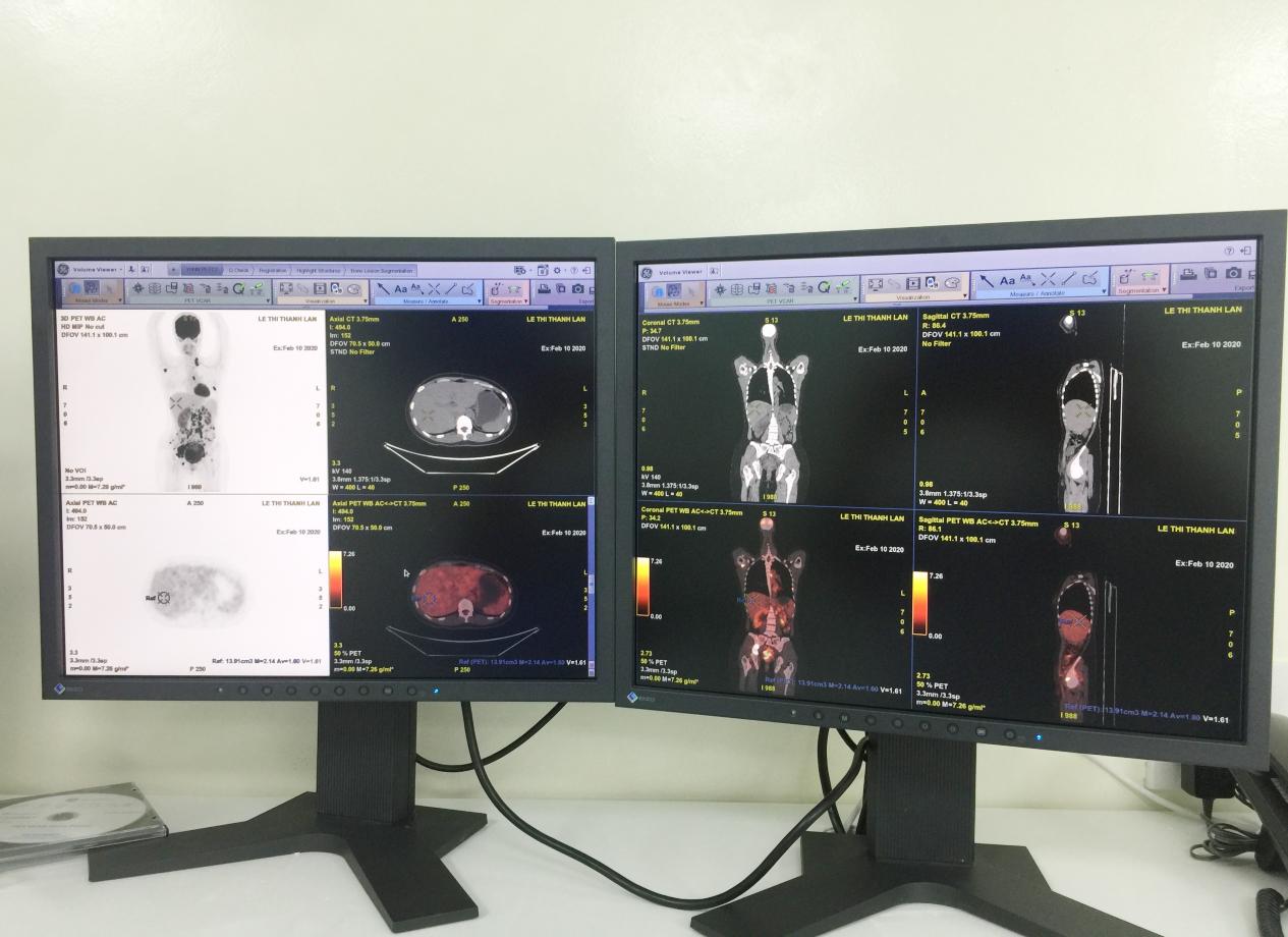 PET/CT cung cấp thông tin về cấu trúc giải phẫu và mức độ chuyển hóa của khối bướu cho bác sĩ