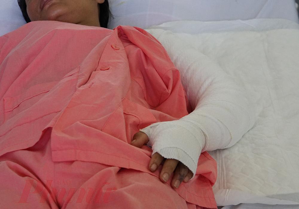 Cả cánh tay chị bị băng kín vì té ngã vào bếp than