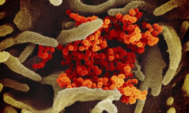 Ảnh chụp virus SARS-CoV-2 gây bệnh COVID-19 qua kính hiển vi điện tử.
