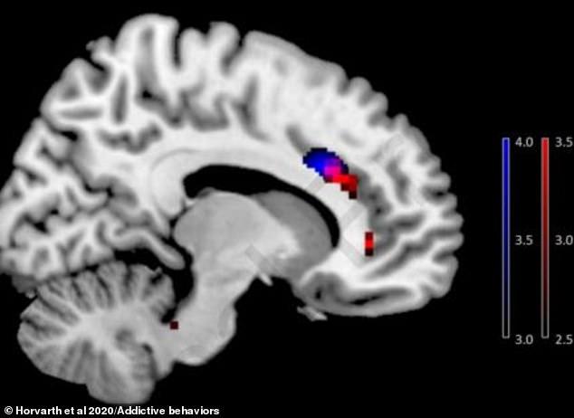 Hình ảnh trong báo cáo cho thấy phần võ não của người nghiện sử dụng điện thoại thông minh (màu đỏ) có sự thu nhỏ so với người không nghiện (màu xanh).