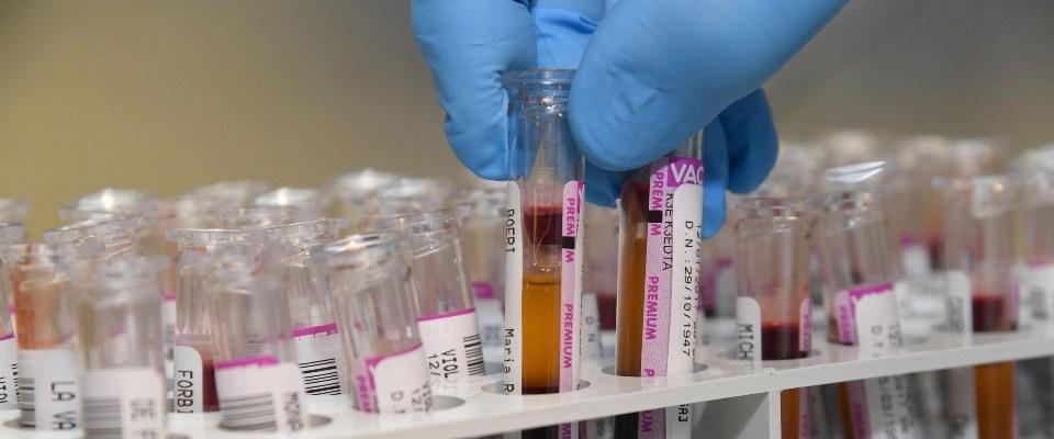 Phát hiện cho thấy virus có thể luân chuyển đến các cơ quan trong cơ thể thông qua máu và hệ tuần hoàn.