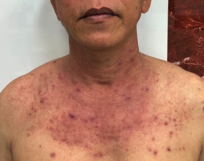 Cả vùng ngực anh D. đỏ ửng, nổi mụn nước do dị ứng với ánh nắng, ảnh BVCC.