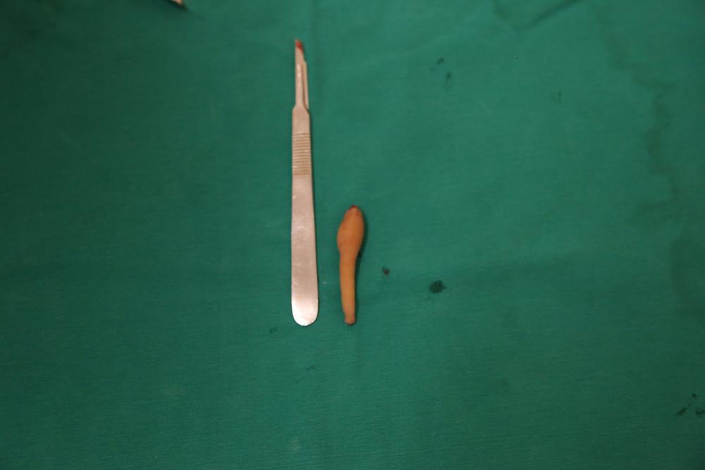 Khoa Phẫu thuật tạo hình thẩm mỹ , Bệnh viện Đa khoa Đức Giang đã phẫu thuật thành công cắt bỏ dị tật còn đuôi bẩm sinh ở bệnh nhi.