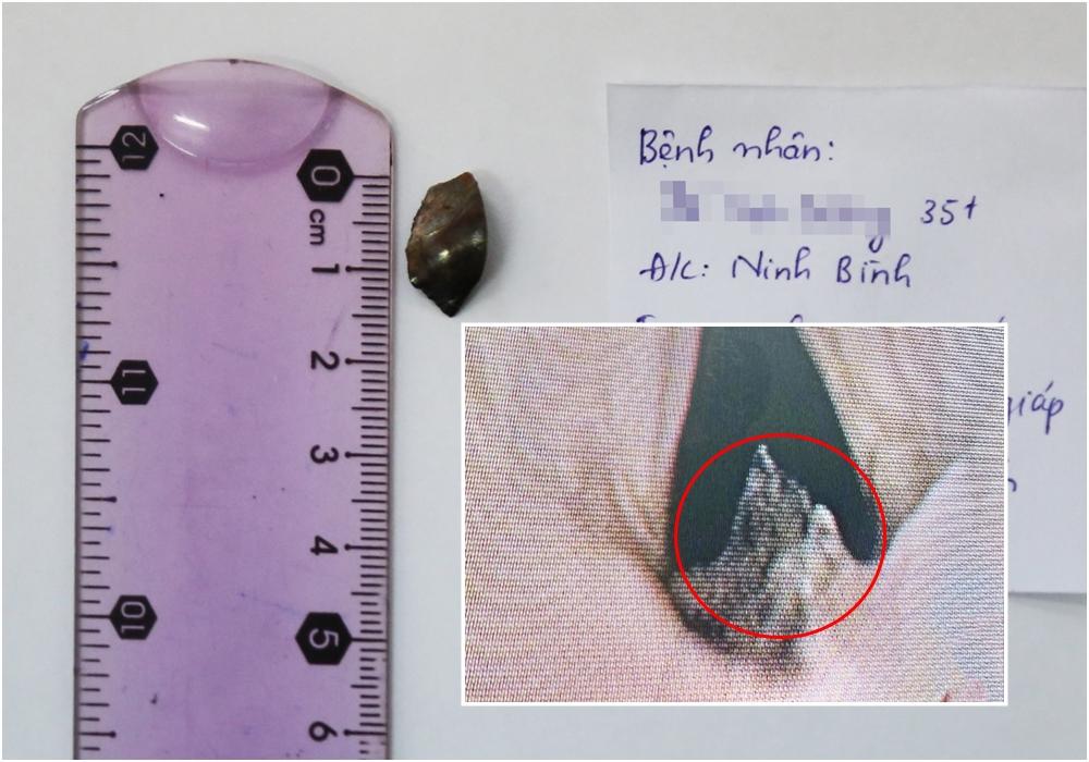 Mảnh kim loại cứng được bác sĩ lấy ra từ vùng cổ bệnh nhân.