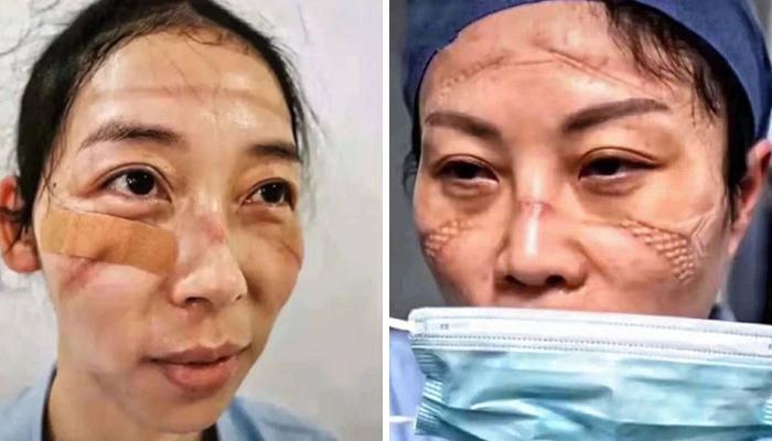 Vết hằn trên mặt những nữ y bác sĩ cho thấy áp lực mà họ trải qua.