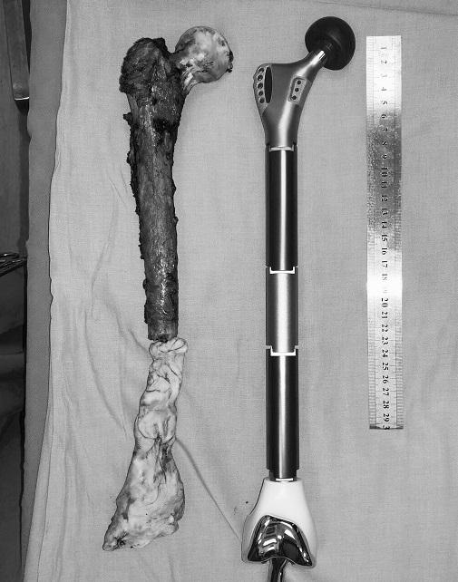 Toàn bộ xương đùi ung thư đã được lấy ra để thay xương đùi bằng dụng cụ kim loại