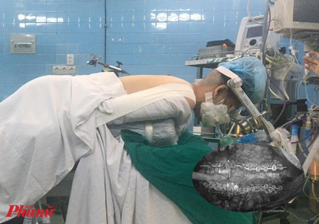 Chị H. được mổ gắn 18 ốc vít vào xương cổ, ngực để nắn chỉnh lại đầu.
