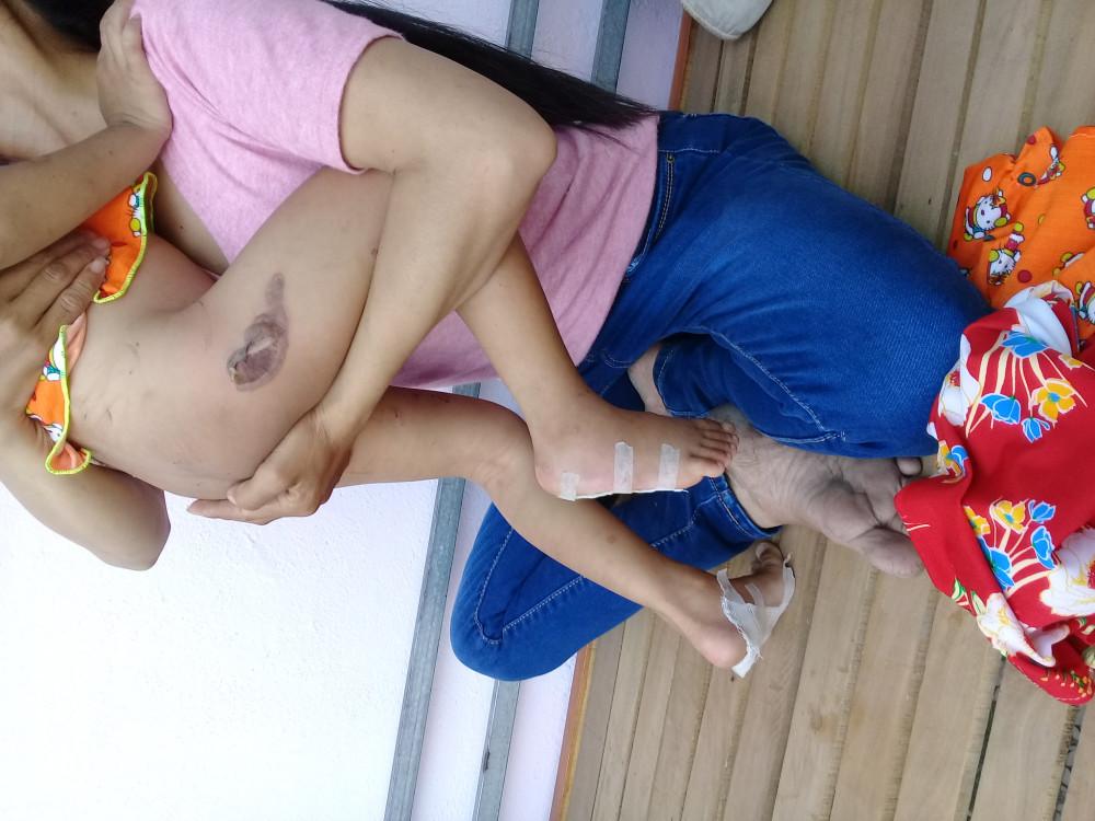 Vết bỏng pô xe trên mông bé P do cha dượng gây ra