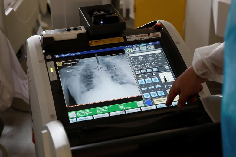 Nhân viên y tế đang chụp X-quang phổi cho một bệnh nhân mắc COVID-19 nặng tại một bệnh viện ở Paris, Pháp.