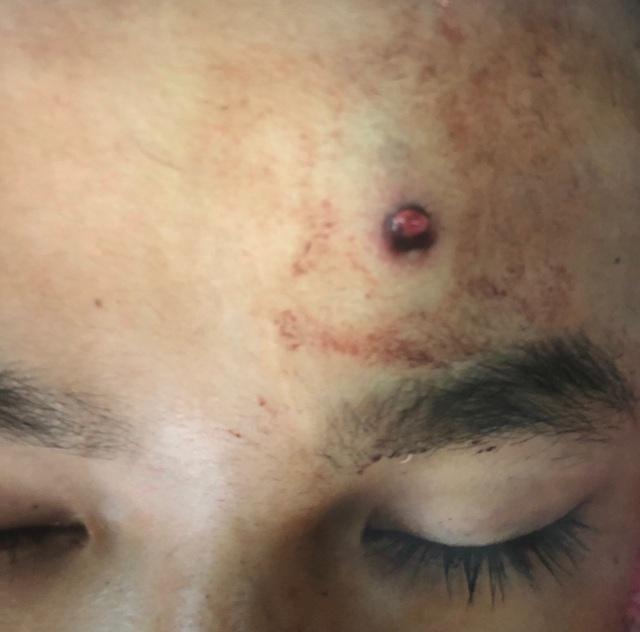 Nam thanh niên bị đạn của súng săn tự chế bắn xuyên não.