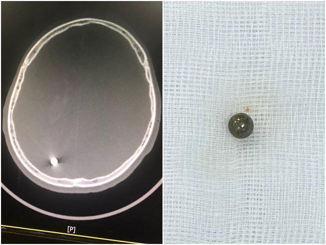 Viên đạn tự chế trong não em Đ là một viên bi lấy từ bộ phận chuyển động của xe đạp
