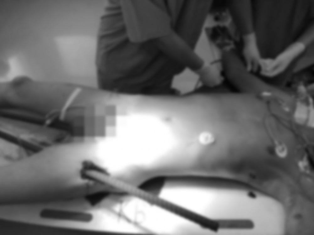 Hình ảnh bệnh nhân bị 2 thanh sắt xuyên qua người