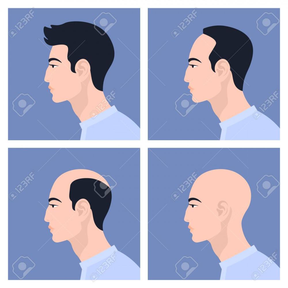 Việc tóc hói khiến đàn ông bị đánh giá gà và kém hấp dẫn. Ảnh minh họa