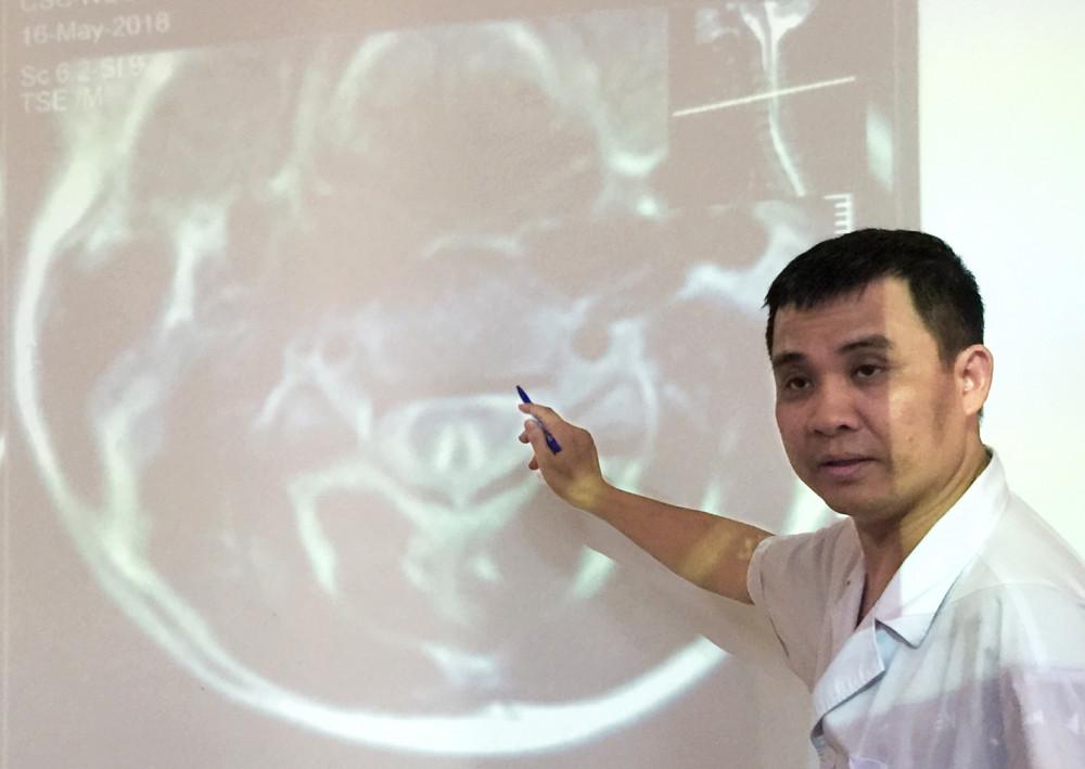Bác sĩ Nguyễn Trung Nguyên phân tích hình ảnh tổn thương tủy sống của bệnh nhân ngộ độc N2O