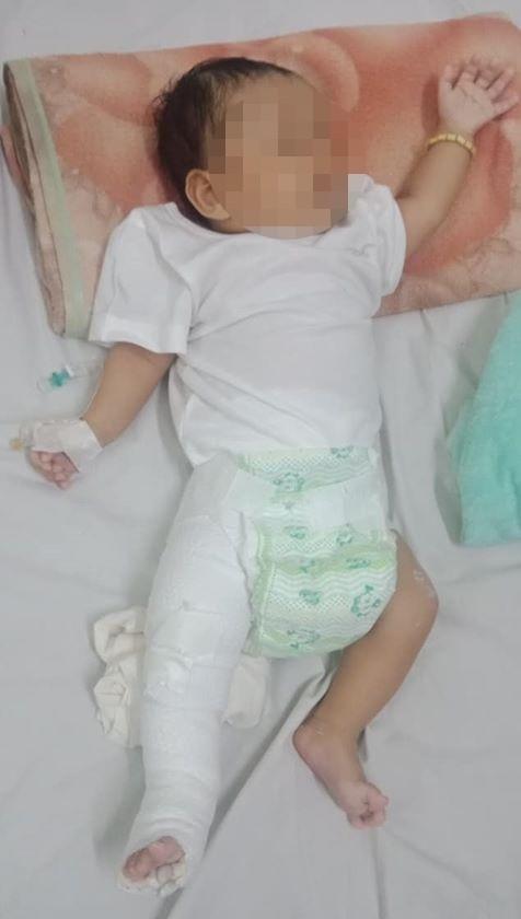 Bé B., sau khi được bó bột tại bệnh viện - Ảnh: Người nhà nạn nhân