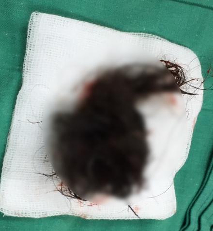 Khối u chứa đầy tóc được bác sĩ lấy ra ngoài