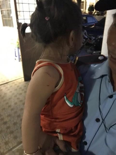 Công an giải cứu thành công bé gái 3 tuổi thoát khỏi kẻ cướp cầm dao.