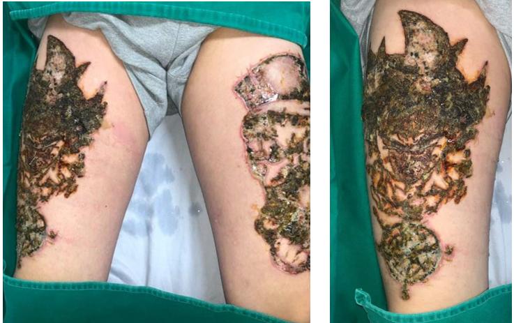Sau xóa xăm 1 ngày, 2 bên đùi bệnh nhân xuất hiện sưng đỏ, chảy dịch tiết, đau rát nhiều, một số tổn thương mụn nước, mụn mủ trợt vỡ đóng vảy tiết màu nâu đen.