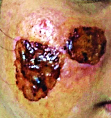 Một bệnh nhân đến Khoa Da liễu -  thẩm mỹ da, Bệnh viện Đại học Y dược TP.HCM khám vì biến chứng sau khi thực hiện kỹ thuật cắt đáy sẹo ở spa