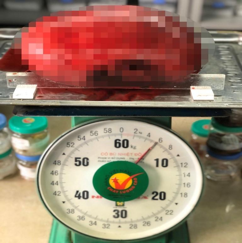 Khối u khủng có kích thước gần 30 cm và nặng 60 kg được lấy ra từ tử cung của bệnh nhân