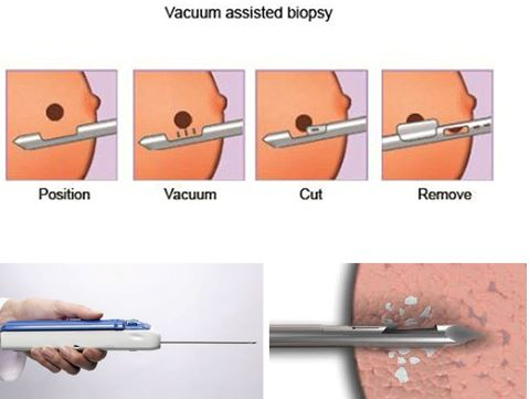Mô phỏng quá trình sinh thiết vú bằng kỹ thuật hút chân không