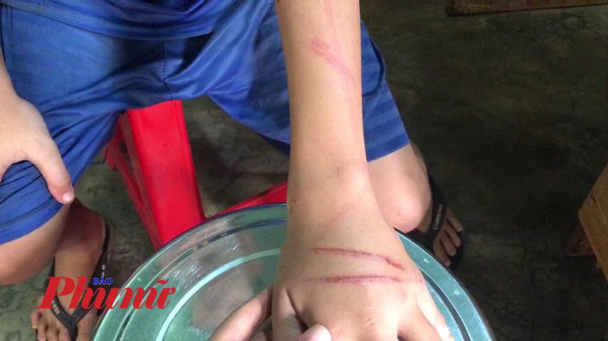 Những vết thương khắp thân thể thiếu niên 12 tuổi
