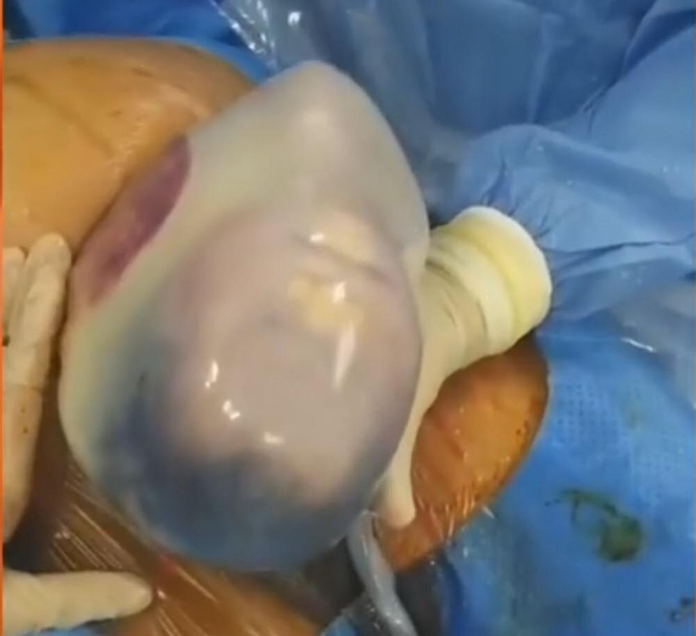 Hình ảnh cặp song sinh còn nằm nguyên trong bọc điều khi các bác sĩ mổ bắt thai