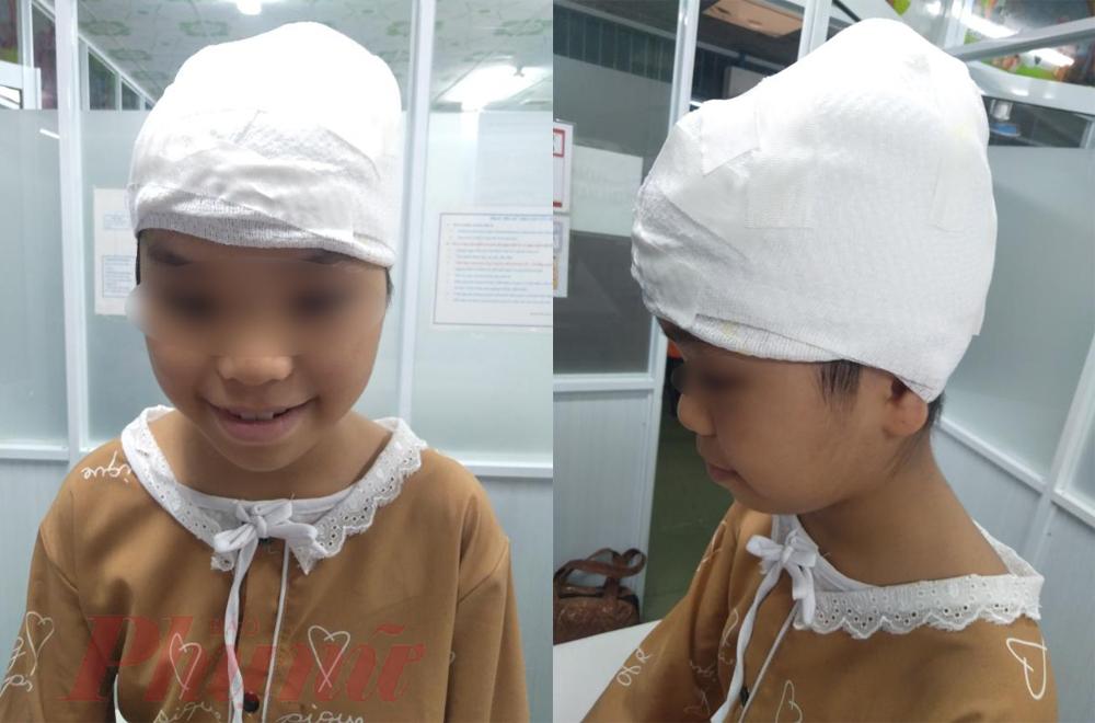 Được điều trị và nâng đỡ tinh thần kịp thời, sức khỏe bé A. đang dần hồi phục, bé thoát khỏi ám ảnh của tai nạn và vui vẻ trở lại.
