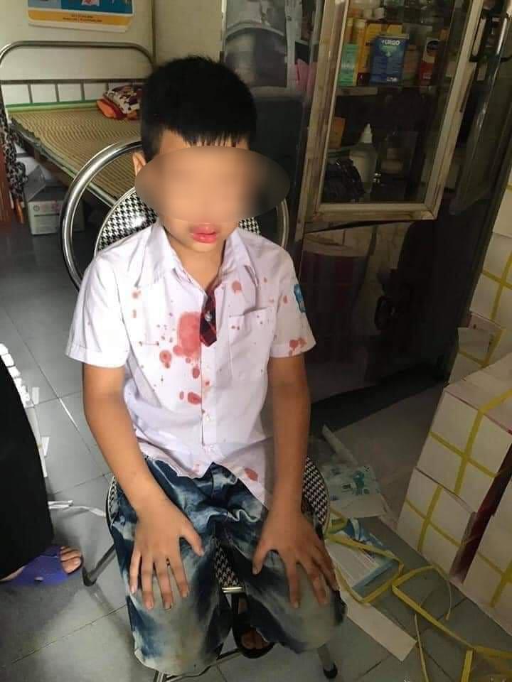 Cháu N.G.K chảy nhiều máu sau khi bị hành hung.