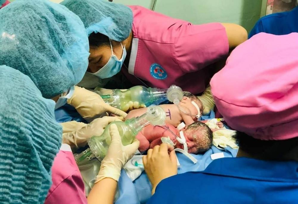 Hai bé gái song sinh chào đời tại Bệnh viện Hùng Vương