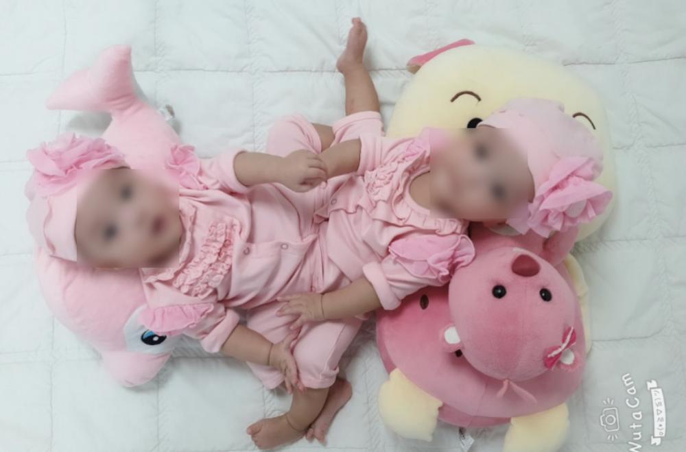 Bé Trúc và bé Diệu sẽ được tách dính vào ngày 15/07/2020 tại BV Nhi đồng Thành phố