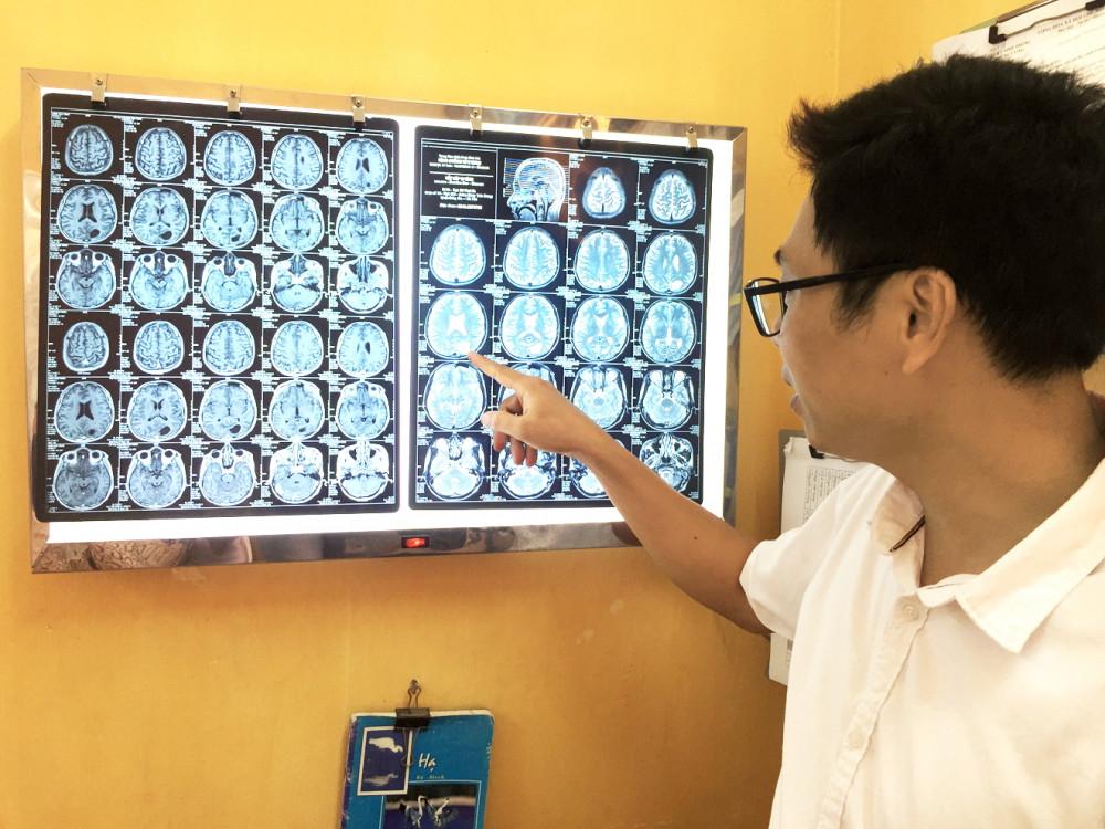 Hình ảnh khối u do ấu trùng sán dây làm tổ gây ra các hiện tượng co giật, đau đầu, nôn mửa… ở bệnh nhân
