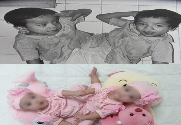 Cặp song sinh Việt - Đức (ảnh trên) và cặp song Nhi (ảnh dưới)