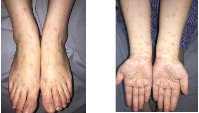Các nốt ban đỏ ngứa rát, khó chịu mọc chi chít trên tay trân và khắp mình của bệnh nhân