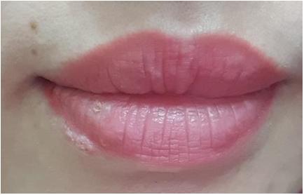 Sau khi xăm môi, bệnh nhân bắt đầu xuất hiện các đám mụn nhỏ