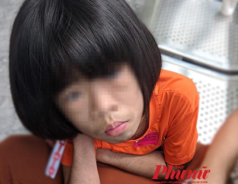 Bé N.B.B.C. - 6 tuổi có khuôn mặt với nhiều lông rậm rạp. Ảnh: Hiếu Nguyễn
