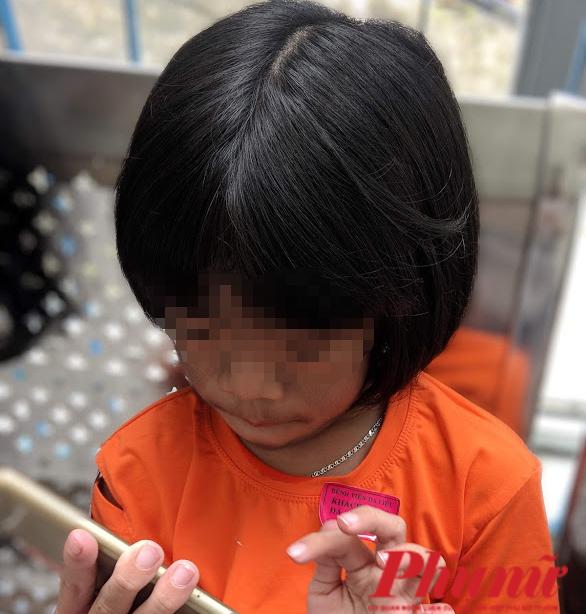 Bé C. đã bị bạn bè chọc ghẹo vì căn bệnh của mình. Cô bé muốn không còn tình trạng nhiều lông như thế này khi vào lớp 1.Ảnh: Hiều Nguyễn