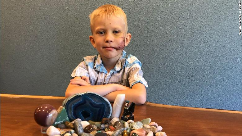 Cậu bé dũng cảm Bridger Walker với chi chít vết chỉ may trên má sau khi bị chó cắn.