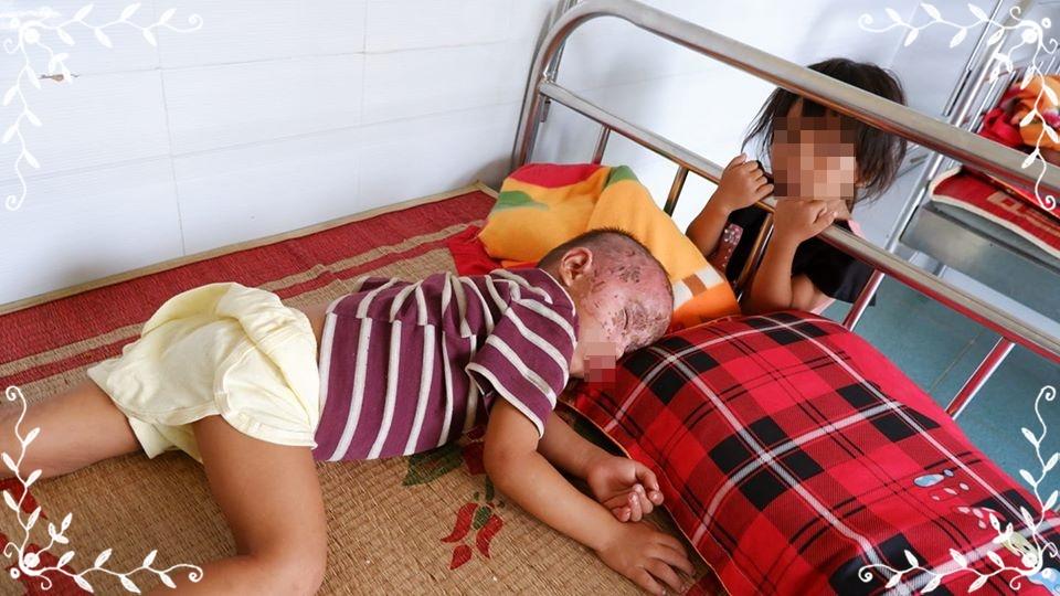 Vết bỏng trên mặt cháu L. đã khô và đang được theo dõi, điều trị tại bệnh viện