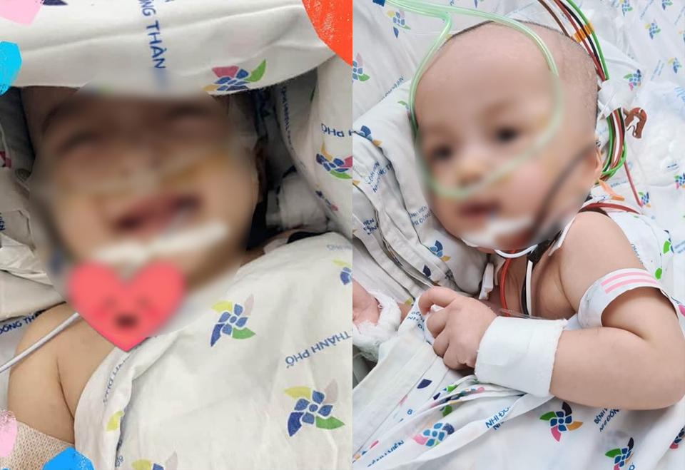 Diệu Nhi - Trúc Nhi đã cai máy thở, sức khỏe hai bé tiến triển tốt, ảnh BVNDTP