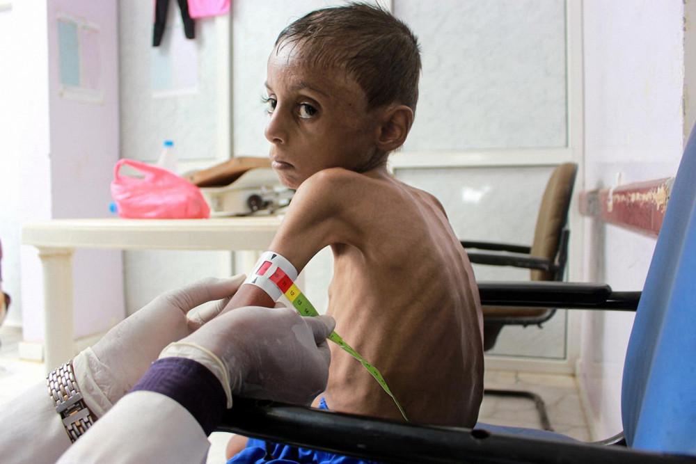 Cậu bé Hassan Merzam Muhammad bị suy dinh dưỡng nặng tại một bệnh viện ở Yemen