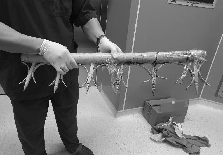 Hàng rào sắt được bác sĩ xử lý, lấy ra khỏi bụng anh T., ảnh Văn Chính.